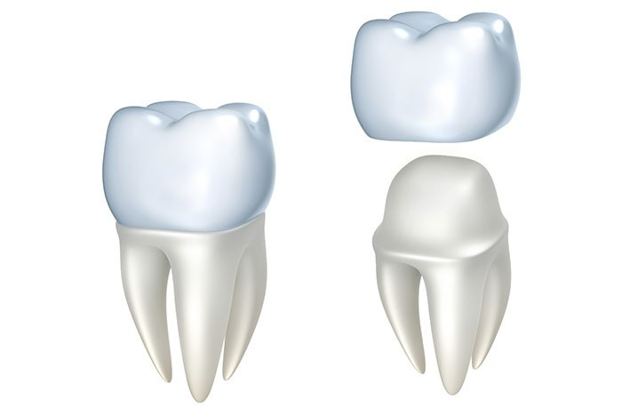 Example of some of our crown veneers in Truganina